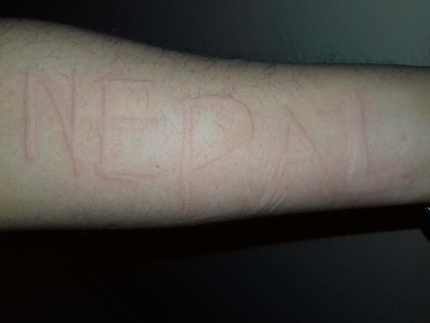 Do you know anybody with dermatographia (skin writing)? - Quora
