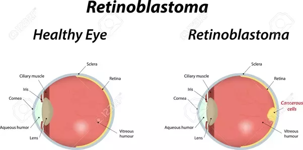 Why is Retinoblastoma so treatable and has such a high survival rate ...