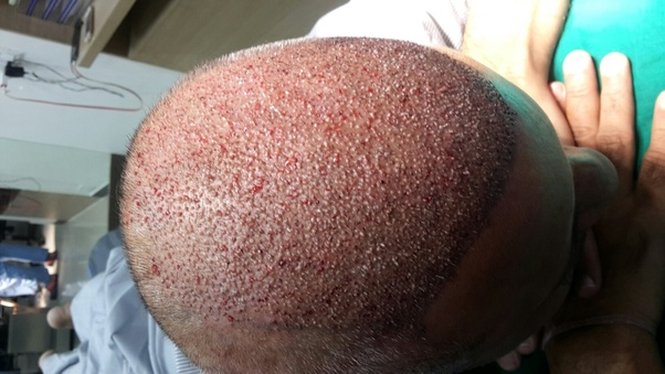 What should you need to follow after hair transplant surgery
