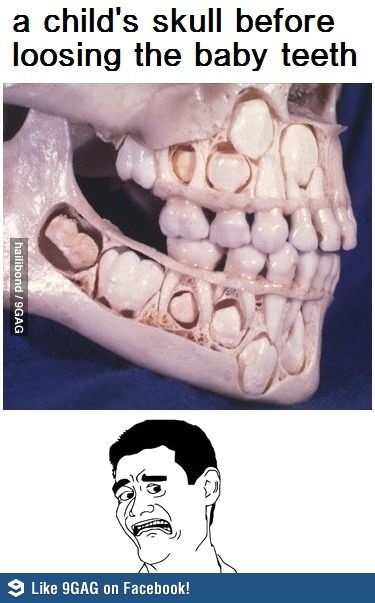 Once removed, can wisdom teeth eventually grow back? - Quora