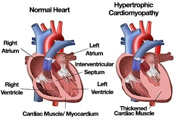 Why would a healthy 20 year old have a heart attack quora this according to mayo clinic the thickened muscle can disrupt the hearts electrical system leading to fast or irregular heartbeats arrhythmias ccuart Choice Image