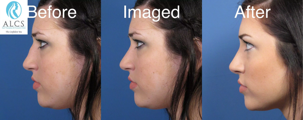 What is the average cost of nose surgery? - Quora