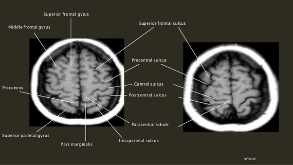 What does it mean when the report of my MRI states the sulci is ...
