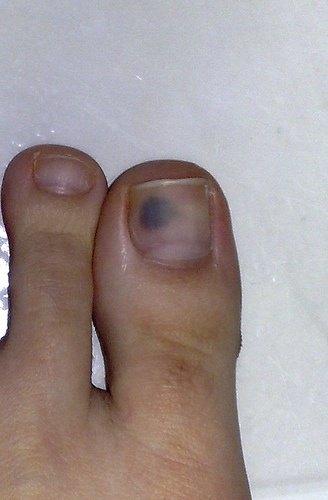 Tiny Black Spot Under My Toenail - Best Nail ImageBrain.Co