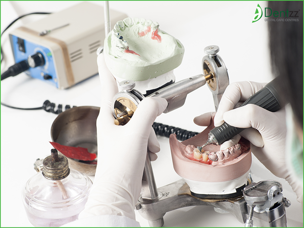 Which Is The Best Brand Of Dental Implants Why Quora