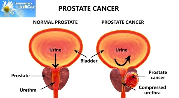 trus guided prostate biopsy cost in mumbai