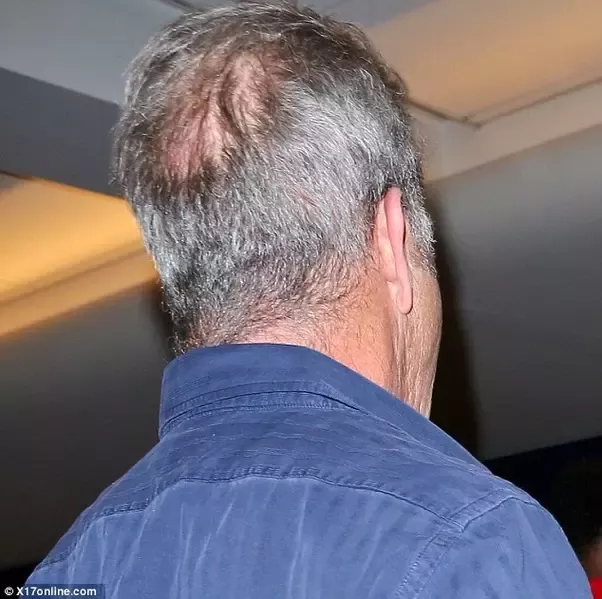 Man With A Bald Spot On The Back Of His Head