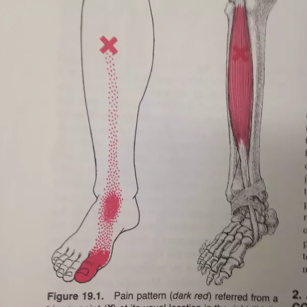 What Could Cause Foot Pain When There Is Pressure On The
