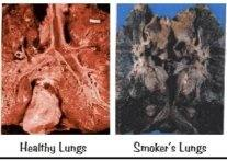how does a chain smoker s lungs looks like compared to a fresh lungs