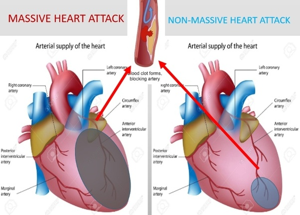 How likely are you to survive a massive heart attack quora improving survival trend but still deadly though heart attack ccuart Image collections