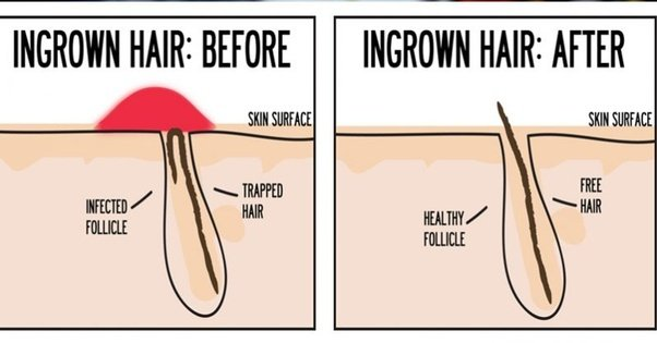 How to treat razor bumps on buttocks? - Quora
