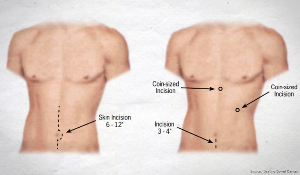 If You Have Colon Cancer And They Opt For Surgery Where Do The Incisions Take Place Quora