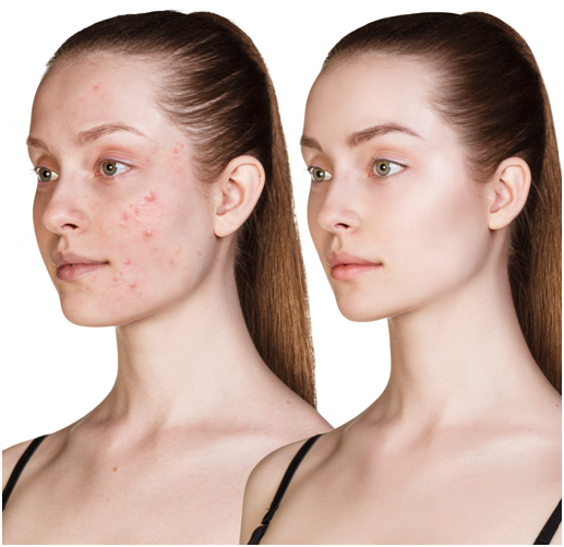 Will laser treatment help to get rid of facial acne and