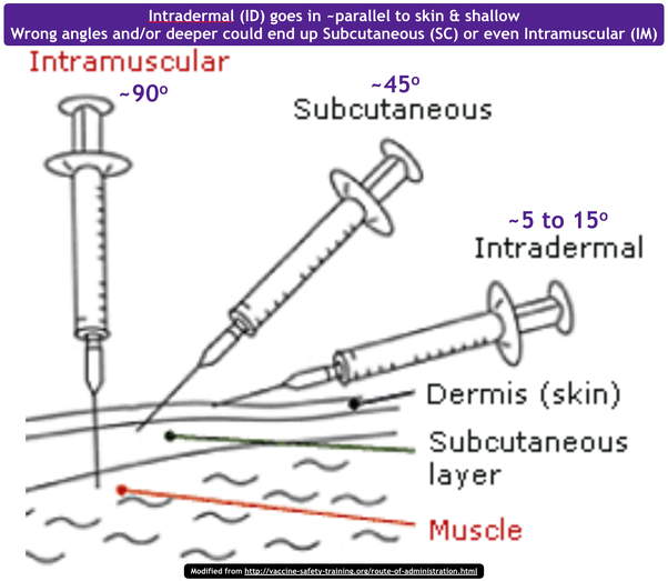 Intramuscular (IM) injection | TK Talk