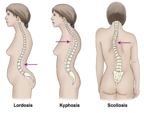 Image result for kyphosis scoliosis