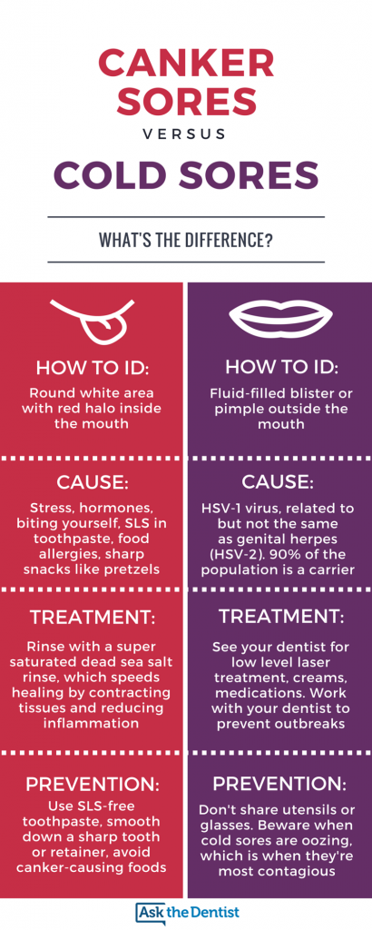 oral-herpes-inside-mouth