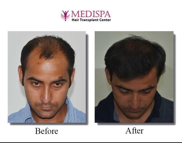 The Cost Of Hair Transplant In Jaipur Delhi Ranges Between Rs 30 150 Inr It Is Just One Fourth Procedure Licable Countries Like