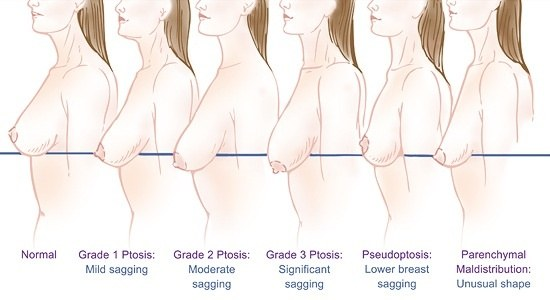 breasts Normal female