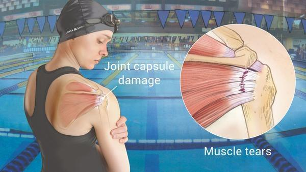 Image result for swimmers shoulder