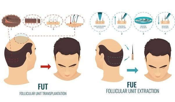 Hair Treatment-Follicular Unit Transplantation (FUT) and Follicular Unit Extraction (FUE)