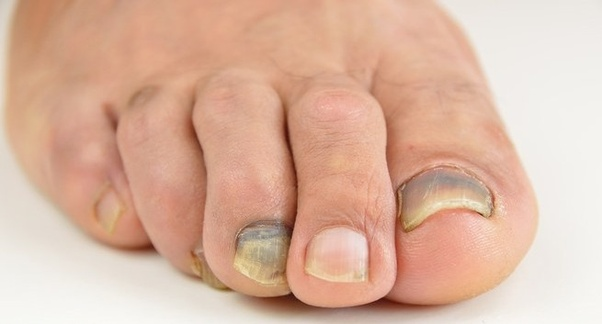 What can I do to prevent thick discoloured toe nails? - Quora