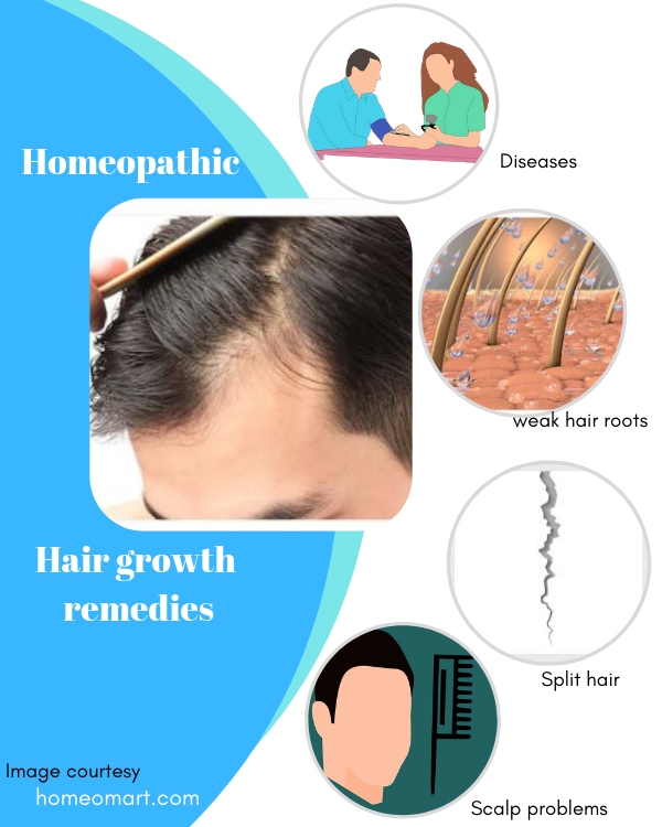 Which is the best homeopathy medicine for hair growth? - Quora