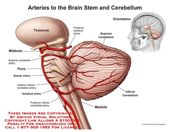 What would decreased blood flow in the cerebellum mean and what the causes of reduced cerebellar blood flow cerebellar ischemia pronounced iss kee me uh i mispronounced it for years may include a blood clot or ccuart Choice Image
