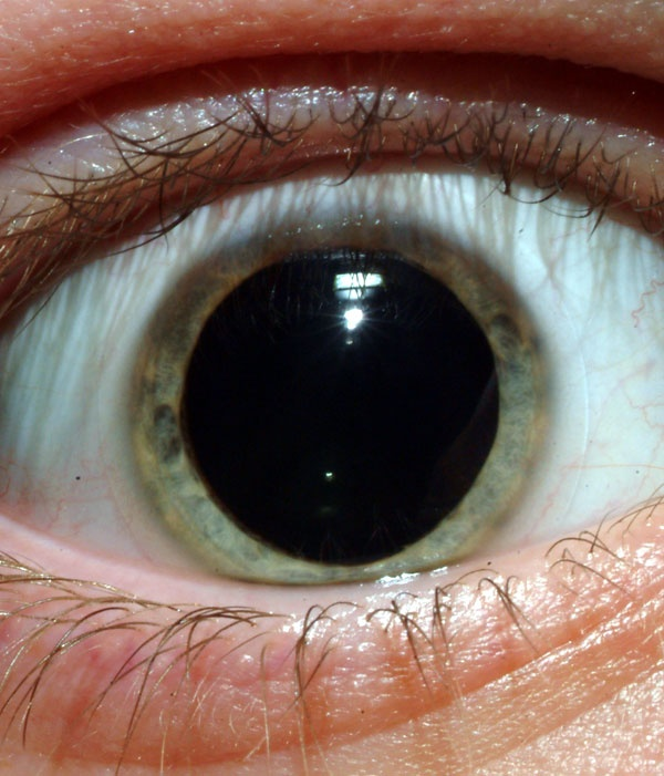 What does it mean to have large pupils with drug use? - QuoraDilated Pupils Drugs
