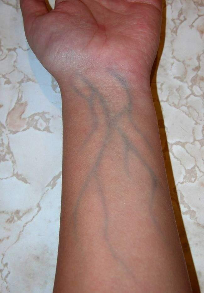 why are my veins so blue