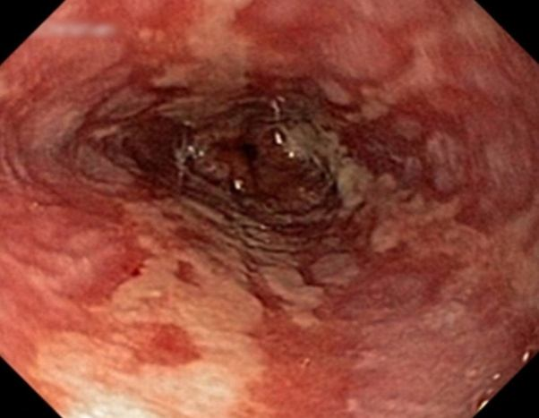How To Know You Have H  Pylori Or An Ulcer