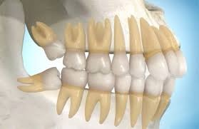 Tooth growing out sideways