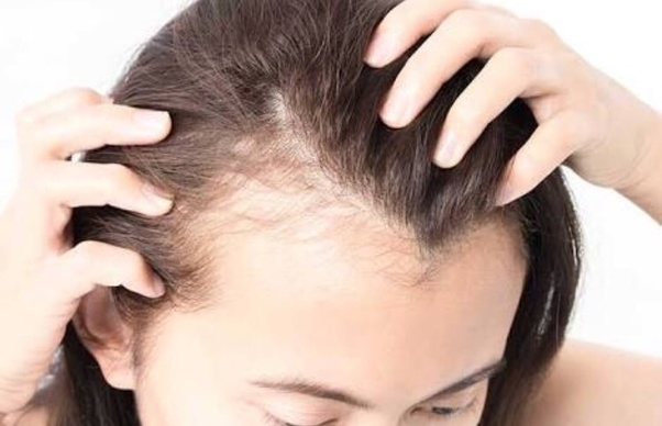 how can i treat my hair loss