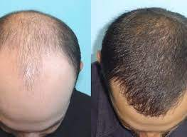 Finasteride permanent sexual side effects