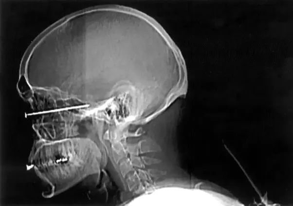 Do you die if stabbed in the eye why or why not quora the brain a marvel of evolution is often able to continue to perform critical functions despite serious local damage whether caused by penetrating trauma solutioingenieria Images