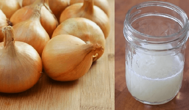 Which Is The Best Remedy For Hair Regrowth Quora