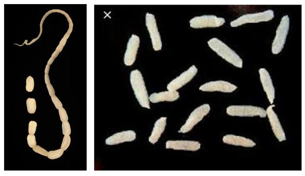 cumpărați tapeworm să piardă în greutate slabeste frumos si sanatos
