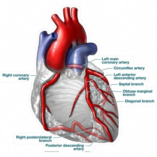 Does the heart muscle actually die when when the coronary artery is ...