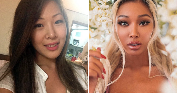 What Kind Of Plastic Surgery Did K Pop Star Jessi Have Quora