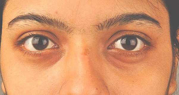 How to get rid of dark eye circles - Quora