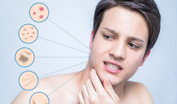 Which companies provide a derma products franchise? - Quora