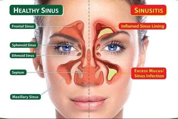 Image result for causes of sinus infections