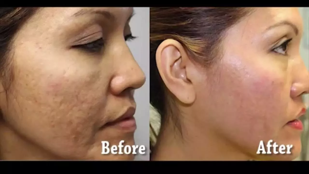 what is microdermabrasion treatment before and afters