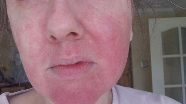 Facial skin allergies