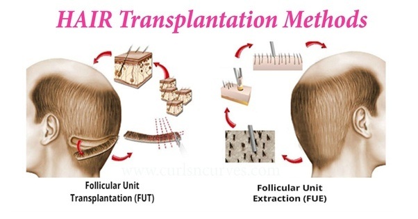 Image result for FUE or FUT Hair Transplant
