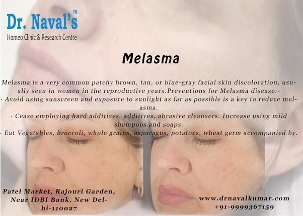 What is the best treatment for melasma? - Quora