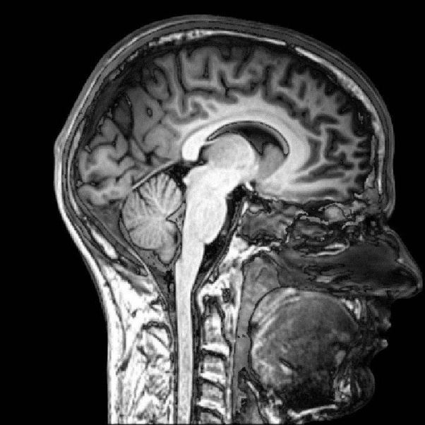 What happens when you get an MRI scan? - Quora