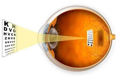 Рубрика: Mi segít a rossz látásból