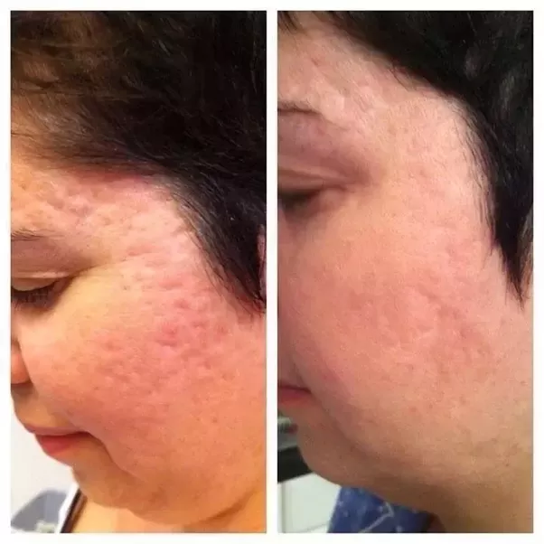 laser treatment for holes on face