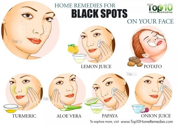 Natural Ways To Remove Rashes On Face