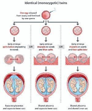 Twins fertilization one egg two sperm